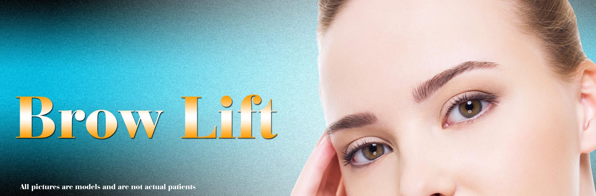 brow lift