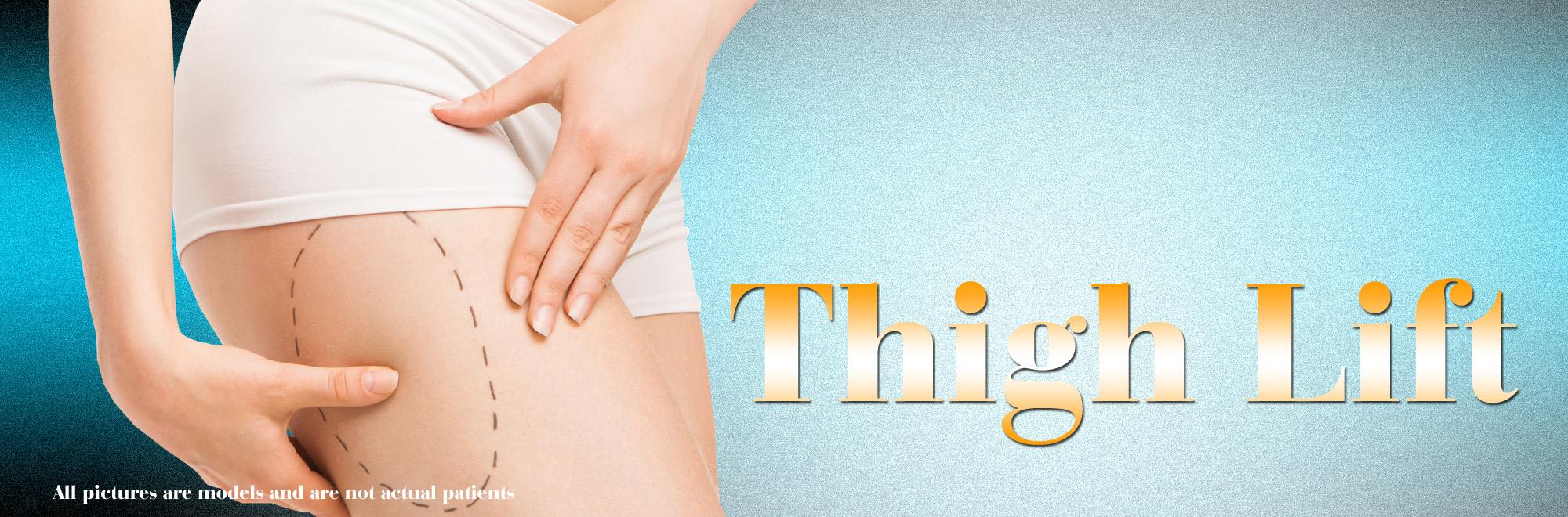 thigh lift